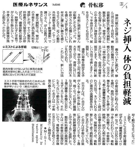 読売新聞2015年4月22日掲載記事